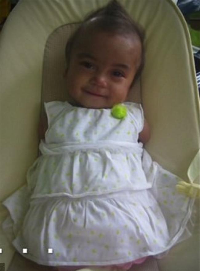 Nếu bạn đã từng bật khóc vì cô bé bóng rổ, thì cũng sẽ động lòng với thiên thần kém may mắn này - Ảnh 4.