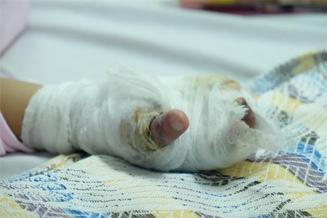 Thương tâm bé trai 5 tuổi bị điện giật khiến hoại tử nặng hai bàn tay - Ảnh 2.