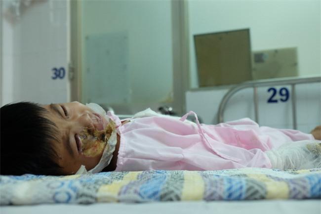 Thương tâm bé trai 5 tuổi bị điện giật khiến hoại tử nặng hai bàn tay - Ảnh 5.