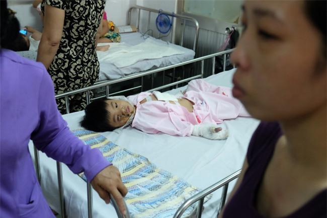 Thương tâm bé trai 5 tuổi bị điện giật khiến hoại tử nặng hai bàn tay - Ảnh 8.