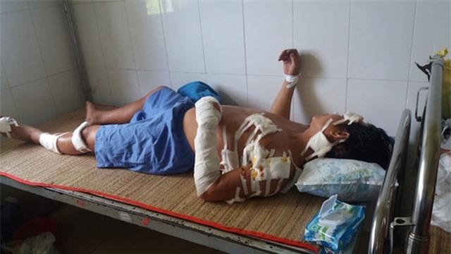 Anh Giang đang nằm điều trị tại bệnh viện với gần 20 vết khâu do bị chém. Ảnh: Minh Hào