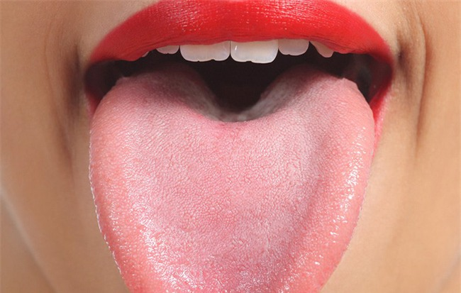 5 điều có thể xảy ra khi bạn quên vệ sinh lưỡi mỗi ngày! - Ảnh 1.