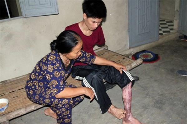 Rơi nước mắt hoàn cảnh chàng trai bị tai nạn mất tay, vợ bỏ đi, một mình chăm con thơ khát sữa - Ảnh 2.