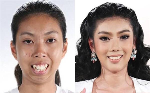 Màn vịt hóa thiên nga ngoạn mục của cô gái Thái không cằm, răng hô khiến dân tình sửng sốt - Ảnh 2.