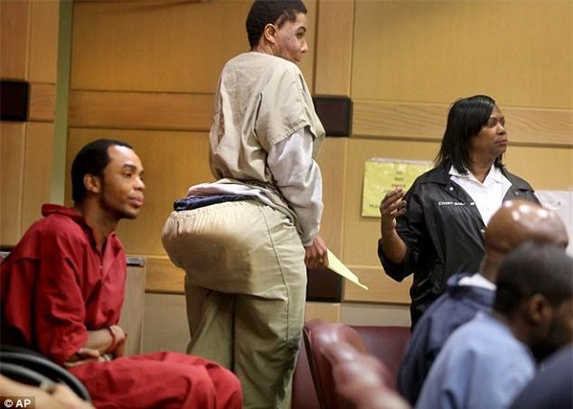 Độn mông bằng xi măng cho khách hàng, gã lang băm trả giá 10 năm tù - Ảnh 1.