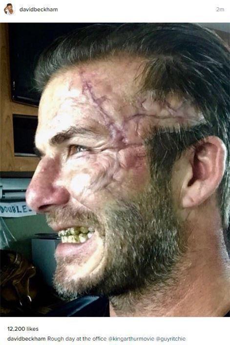 David Beckham dọa fan chết khiếp với khuôn mặt đầy sẹo và răng vàng ố - Ảnh 2.