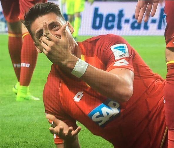 Sao Bundesliga gãy gập ngón tay kinh dị - Ảnh 1.