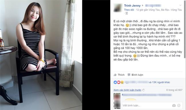 Chỉ còn một chân, nhưng thay vì ngồi khóc, cô gái này nỗ lực 1.000 lần để... - Ảnh 1.