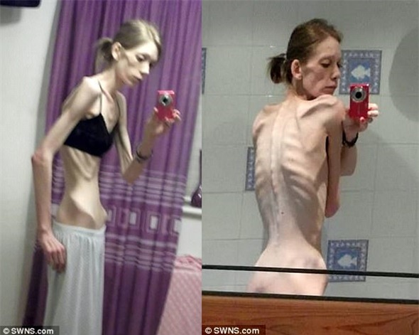 Từ một bộ xương di động, cô gái lột xác và giành chức vô địch thể hình chỉ sau 18 tháng - Ảnh 1.
