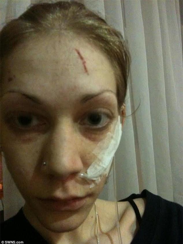 Từ một bộ xương di động, cô gái lột xác và giành chức vô địch thể hình chỉ sau 18 tháng - Ảnh 2.