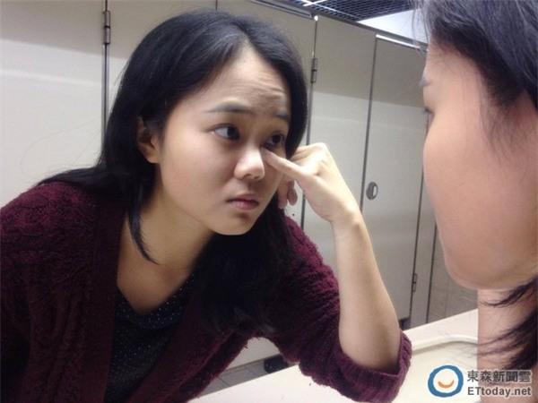 Vì lười làm việc này trước khi ngủ, cô gái 25 tuổi bị giảm một nửa thị lực, suýt mù - Ảnh 1.