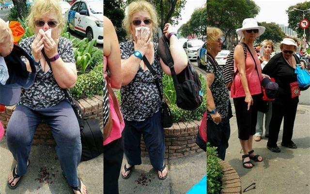 Hình ảnh nữ du khách bị vấp móc sắt trên vỉa hè dẫn đến bị thương