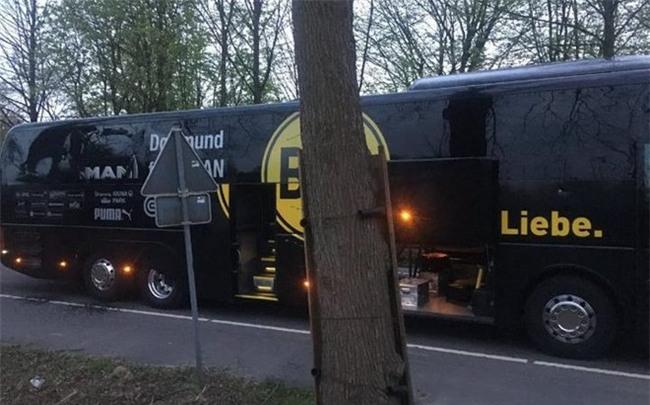 Xe bus cho doi Dortmund phat no, hau ve Bartra nhap vien hinh anh 1