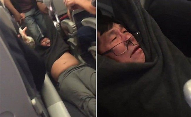 Be boi United Airlines: Ong David Dao co pham luat khong? hinh anh 1