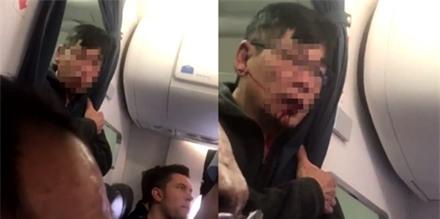 Nhà Trắng lên tiếng về scandal kéo lê khách của United Airlines ảnh 1
