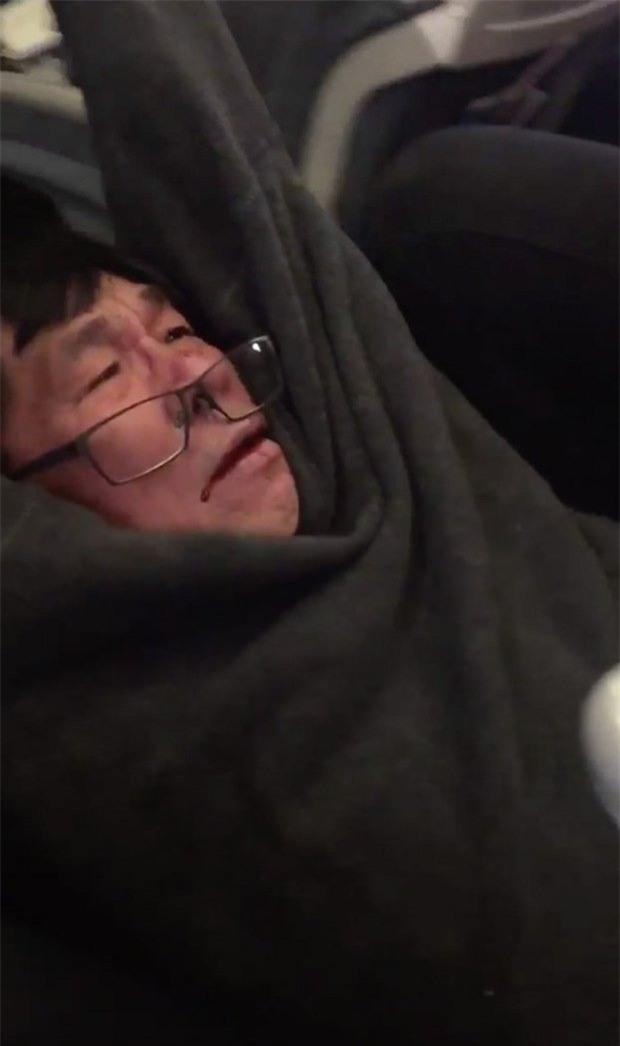 bác sĩ gốc Việt, bác sĩ bị lôi khỏi máy bay, khách gốc Việt bị lôi khỏi máy bay, United Airlines, David Dao