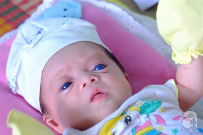 Ánh mắt đầy ám ảnh của thiên thần mắt xanh không thấy ánh mặt trời, chưa một lần gặp cha - Ảnh 1.