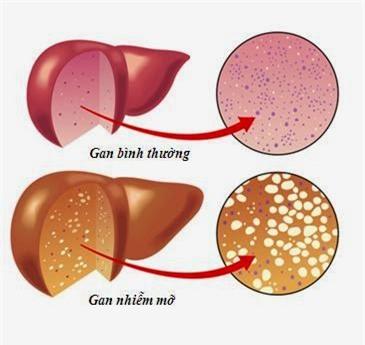 Trẻ nhỏ đã mắc gan nhiễm mỡ, dấu hiệu phát hiện sớm bệnh này - Ảnh 1.