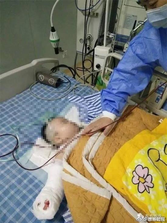 Bé sơ sinh bị bác sĩ cắt mất ngón tay khi đến viện thay băng vết bỏng - Ảnh 2.