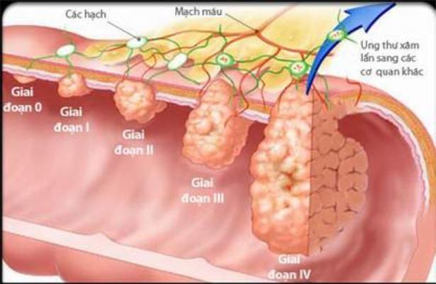 Chuyên gia Malaysia: 3 cách phát hiện sớm, loại bỏ ung thư đại trực tràng từ trứng nước - Ảnh 1.