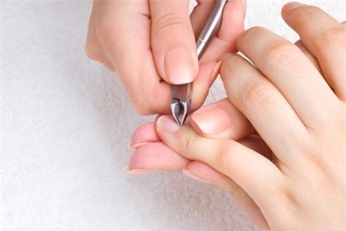 """Giựt da móng tay, nhổ tóc bạc… đã đến lúc bạn phải ngưng ngay vì """"sướng nhất thời nhưng hại cuộc đời"""" - Ảnh 2."""