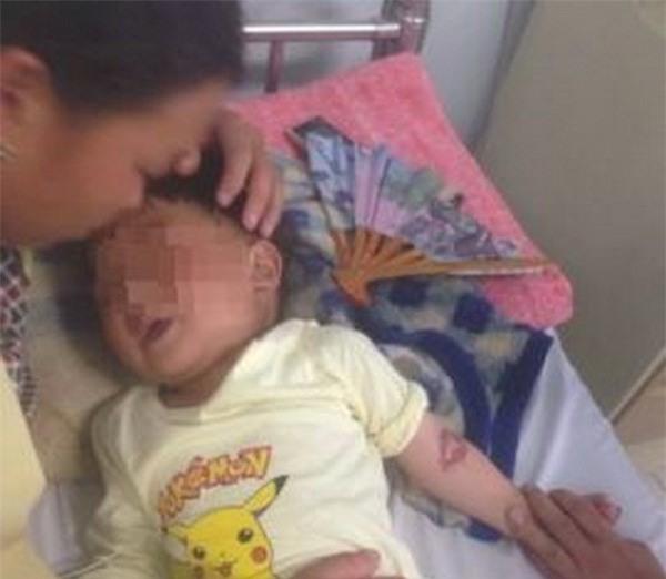 Ăn nhầm hóa chất, bé trai bị bỏng miệng và thực quản dạ dày - Ảnh 1.