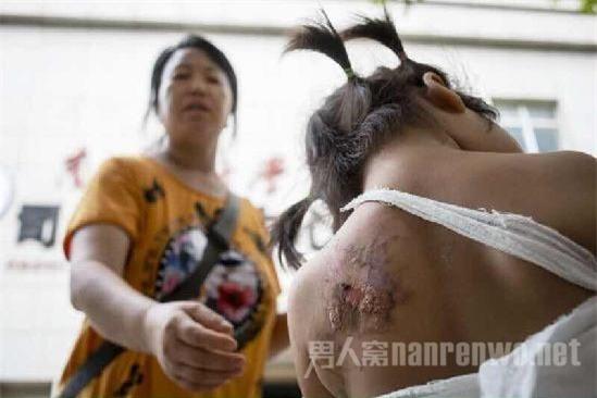 Bé gái 2 tuổi tử vong vì bị mợ phun nước nóng vào người sau khi tè dầm - Ảnh 1.