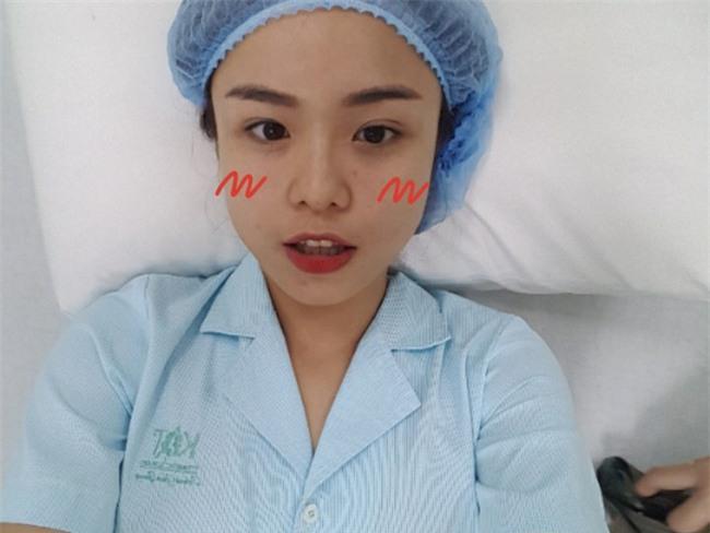 Thái Trinh để livestream phẫu thuật thẩm mỹ, lột xác hoàn toàn sau nâng mũi và cắt mí - Ảnh 1.