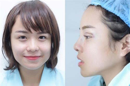 Thái Trinh để livestream phẫu thuật thẩm mỹ, lột xác hoàn toàn sau nâng mũi và cắt mí - Ảnh 2.