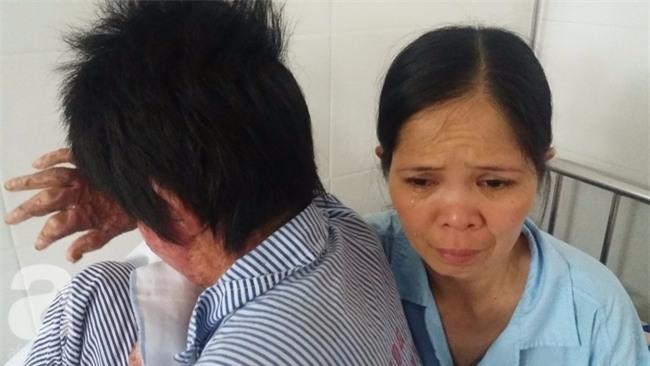 Nỗi đau và ký ức kinh hoàng của người vợ sống sót sau khi bị chồng nhốt rồi tẩm xăng cùng tự thiêu - Ảnh 1.
