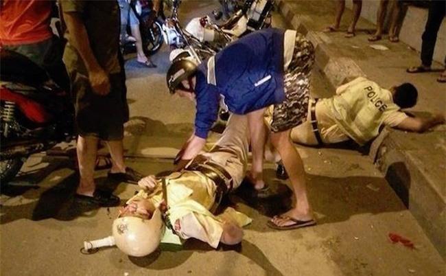 Một cảnh sát giao thông bị xe đâm chấn thương sọ não