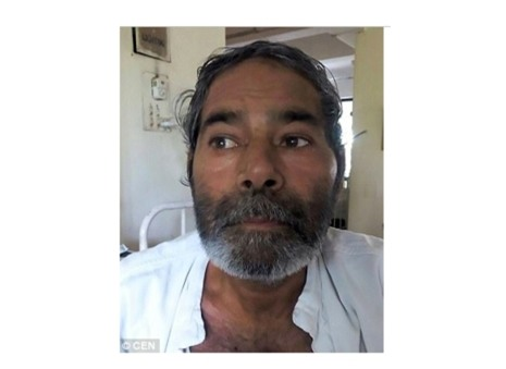  Ông Meena cùng gia đình không hề biết tại sao trong người ông lại có nhiều cây kim như vậy. Ảnh: DAILY MAIL
