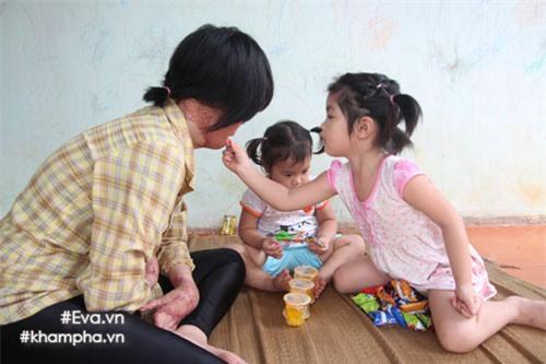 nghi luc phi thuong cua co gai 9x chi con 1% co hoi song do bi chong thieu xang - 1