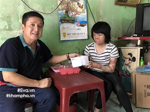 nghi luc phi thuong cua co gai 9x chi con 1% co hoi song do bi chong thieu xang - 2