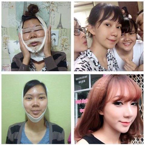 Cô gái thay đổi 100% ngoại hình nhờ PTTM Tuyết Nhung: Chỉ cần có tiền, phụ nữ sẽ giữ được thanh xuân - Ảnh 1.