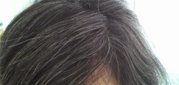 Đừng xem nhẹ, tóc bạc sớm cũng là dấu hiệu cảnh báo hàng loạt vấn đề sức khỏe - Ảnh 1.