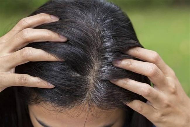 Đừng xem nhẹ, tóc bạc sớm cũng là dấu hiệu cảnh báo hàng loạt vấn đề sức khỏe - Ảnh 2.