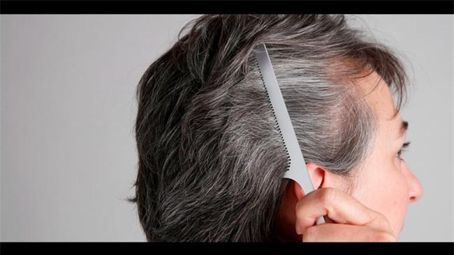 Đừng xem nhẹ, tóc bạc sớm cũng là dấu hiệu cảnh báo hàng loạt vấn đề sức khỏe - Ảnh 3.