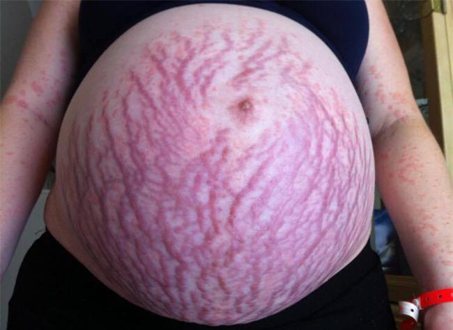 Hình ảnh hãi hùng của một mẹ bầu cảnh báo về căn bệnh phổ biến trong thai kỳ - Ảnh 1.