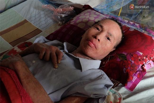 Cuộc sống khốn khó của người chồng liệt giường suốt 2 năm, từng muốn chết để vợ con bớt khổ - Ảnh 10.