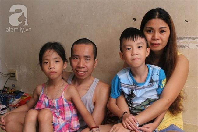 Người em trong cặp song sinh Việt - Đức phải phẫu thuật tạo hình niệu quản - Ảnh 3.