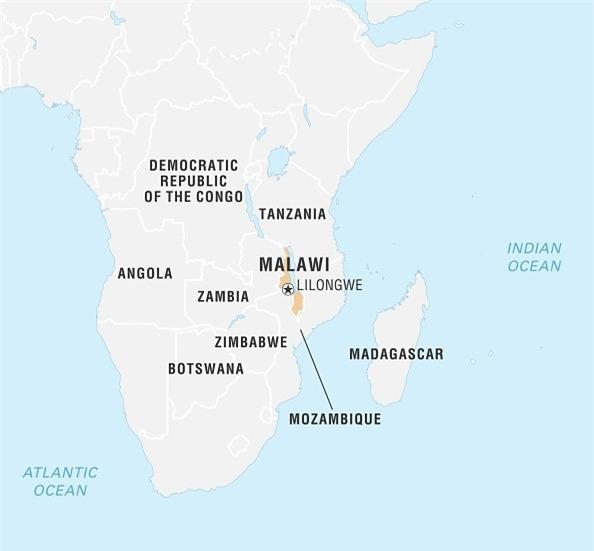 Noi so bi chat tay chan cua nguoi bach tang Malawi hinh anh 1