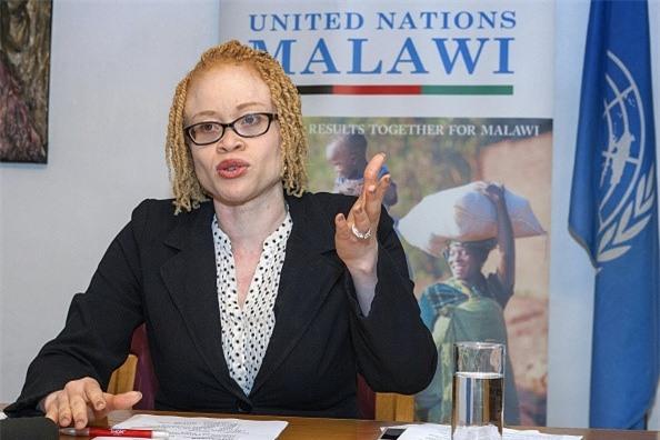 Noi so bi chat tay chan cua nguoi bach tang Malawi hinh anh 2