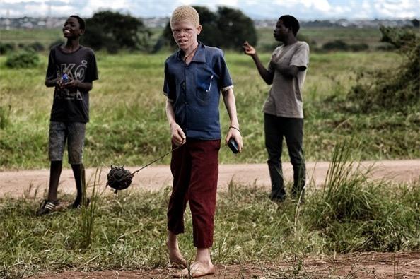 Noi so bi chat tay chan cua nguoi bach tang Malawi hinh anh 3
