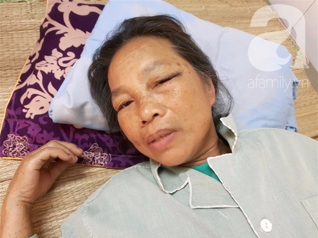 Hà Nội: Bà lão gần 70 tuổi bị em trai dùng xẻng tấn công khiến nhập viện cấp cứu - Ảnh 2.