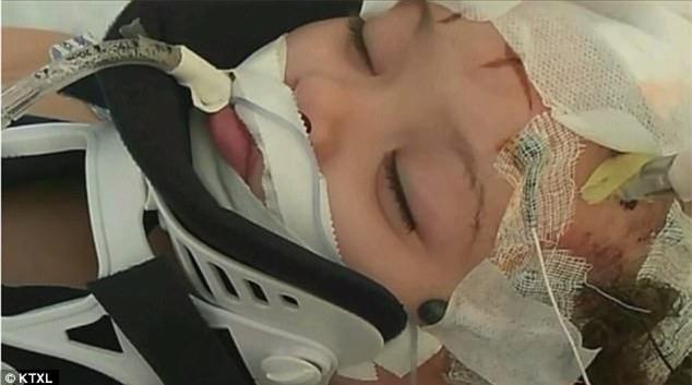 Bé gái 2 tuổi tổn thương não vì bị bảo mẫu là một cậu thiếu niên 16 tuổi trừng phạt - Ảnh 1.