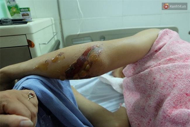 Người thân không nhận ra nam sinh mắc kẹt dưới gầm ô tô Camry sau tai nạn kinh hoàng ở Bắc Ninh - Ảnh 3.