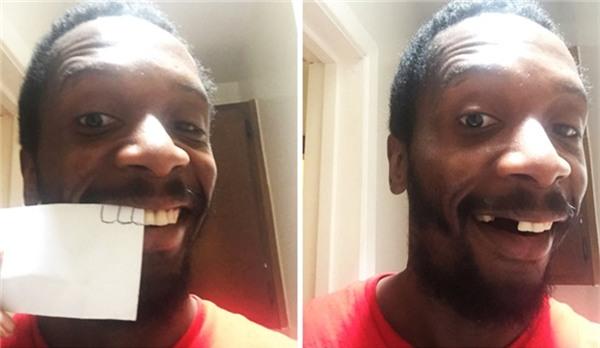 Mất cái răng nào thì vẽ cái răng ấy thế vào thôi!