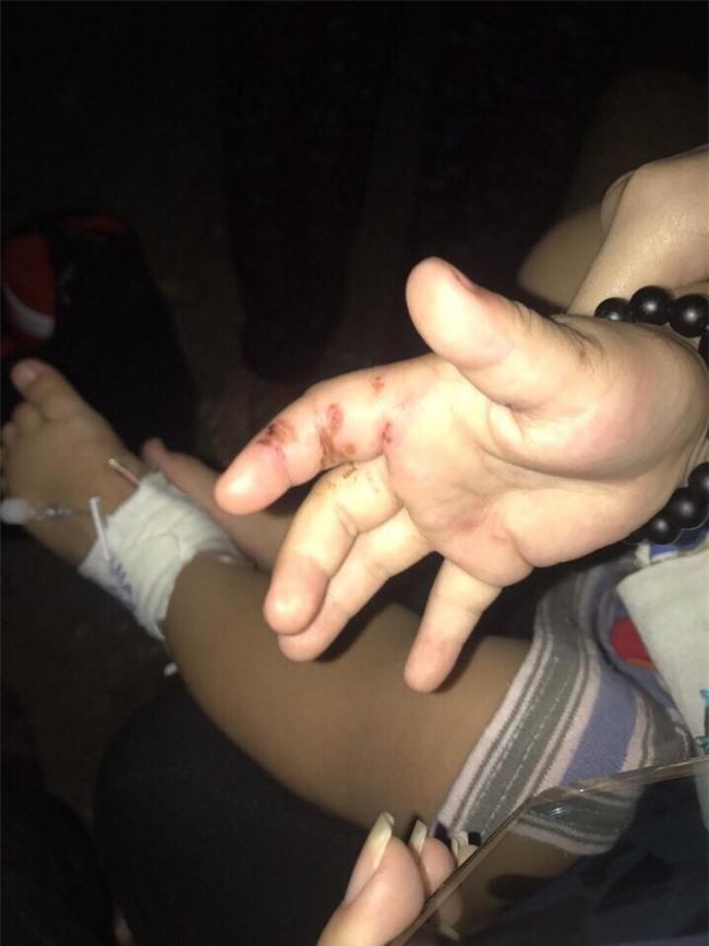 Bình Dương: Người mẹ trẻ tiếp tay cho chồng hờ, bạo hành con trai 2 tuổi phải nhập viện cấp cứu? - Ảnh 2.