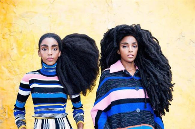 Mọi người đều nghĩ hai cô gái đội tóc giả nhưng sốc khi biết sự thật - Ảnh 7.